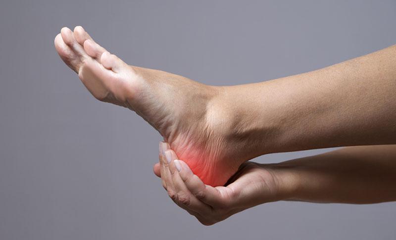 Plantar Fasciitis – Heel Pain