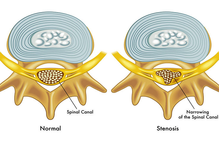 spinal stenosis definition
