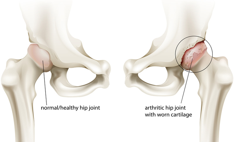 sarthritic hip joint
